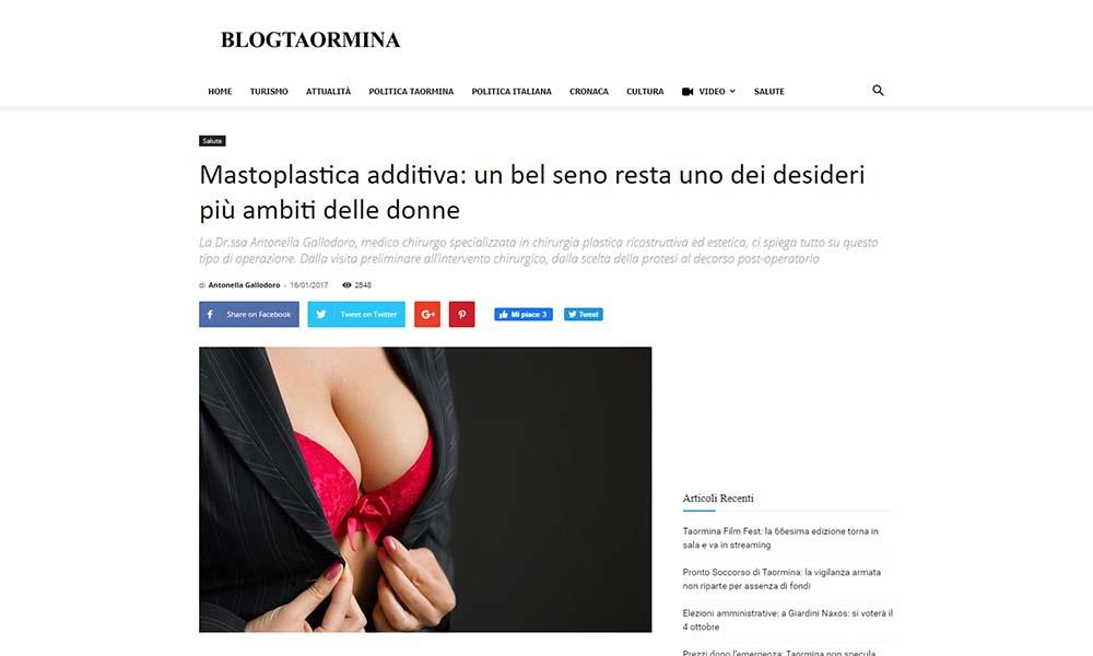 Mastoplastica additiva un bel seno resta un desiderio