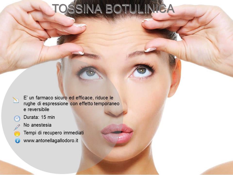 Tossina botulinica